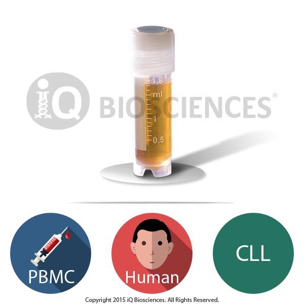 Human CLL PBMCs