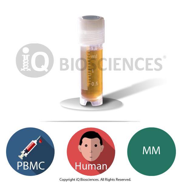 Human Multiple Myeloma (MM) PBMCs